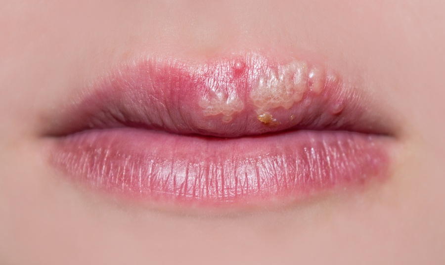 Plagued by Herpes? - Ozone Therapy