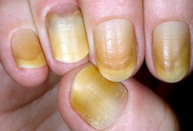 Yellow nail syndrome