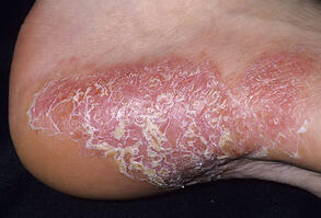 Psoriasis on your heel is connected to your gut. Second Nature Care specializes in reversing autoimmune diseases.
