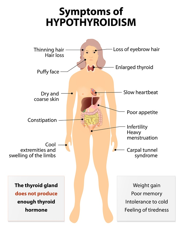 bigstock-Hypothyroidism-106286930-2.jpg