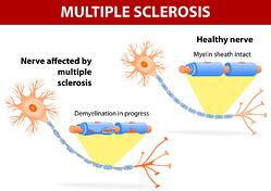 New hope for MS treatments