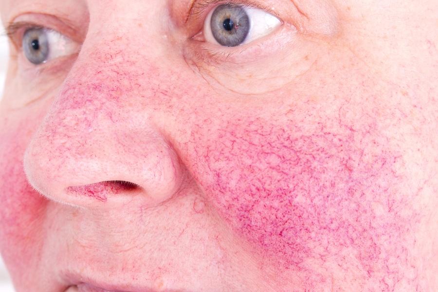 bigstock-Rosacea-Facial-Skin-Disorder--204242509