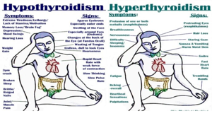 hypo-hyper-thyroid-This Photo by Unknown Author is licensed under CC BY-SA-NC