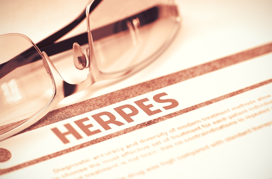 The Hope for Herpes Series - HSV-1 vs  HSV-2 Ozone Therapy